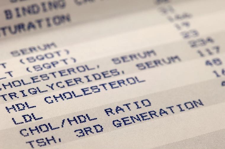 Tumačenje krvne slike: Šta znače sve one skraćenice i na šta njihove vrednosti upućuju!