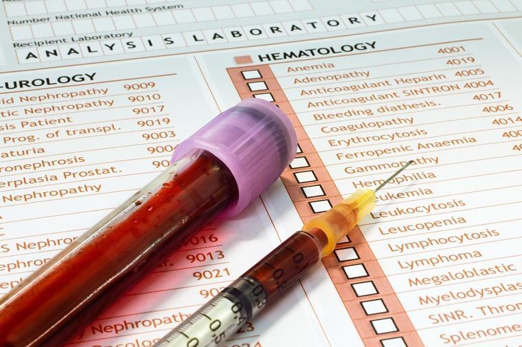 Pravila pred vađenje krvi koja mnogi i ne znaju – zbog ovoga rezultati često nisu validni!