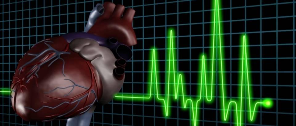 Zapamtite: Pravilo broj jedan koje pomaže kod nepravilnog rada srca