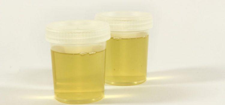 Evo što boja urina / mokraće govori o vašem zdravlju